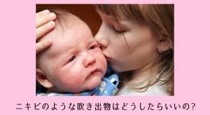 乳児ニキビ