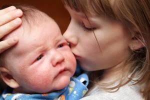 赤ちゃん湿疹1