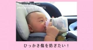 赤ちゃんの顔にひっかき傷が!肌トラブルを防ぐためのケアと対策