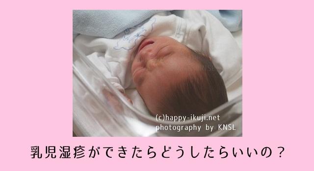 新生児・生後1カ月の乳児湿疹!保健師のアドバイス付き頭・顔・身体のおすすめケア