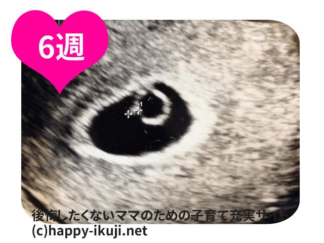 妊娠6週目は心拍確認できる?100人の体験談と注意したい出血・腹痛