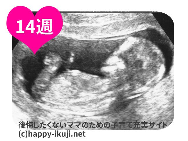 妊娠14週(14w)のお腹の大きさとエコーの写真付き!100人に聞いた体重管理と貧血