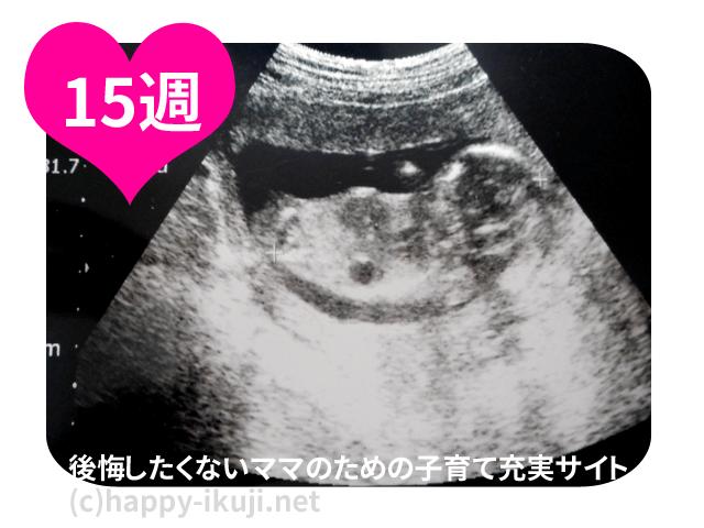妊娠15週(15w)の妊婦検診で100人の体験!体重の増えすぎ切迫流産・出血