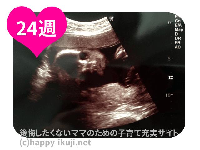妊娠24週(24w)のお腹は小さい?50人に聞いた胎児は大きい?体重の増加